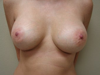 Saline Breast Augmentation Moderate Plus Profile 325 cc after 339386