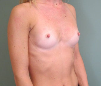 Breast Augmentation 598642