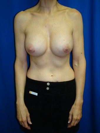 Breast Augmentation Revision after 75891
