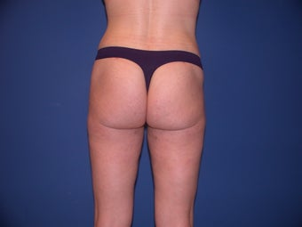 Liposculpture of Thighs, Hips and Buttocks after 99793