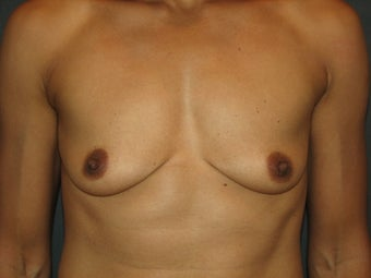 Bilateral Breast Augmentation with Silicone Gel Implants before 472900