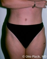 Abdominoplasty after 566565