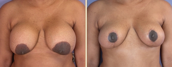 Breast Implant Removal before 270062