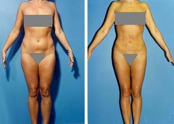 Liposuction before 636214