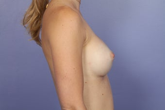 Breast Augmentation 467311
