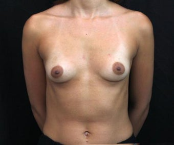 Subfascial Breast Augmentation before 399881