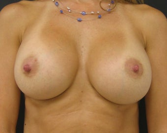 Silicone Gel Breast Augmentation after 145463