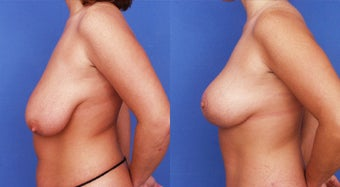 Breast Lift before 133971