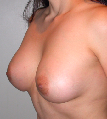Breast Augmentation after 283274