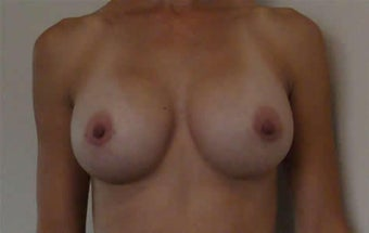 Revisionary Breast Surgery (Saline to Silicone-Gel) after 125290