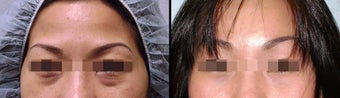 Lower Eyelid(Blepharoplasty) Surgery before 650663