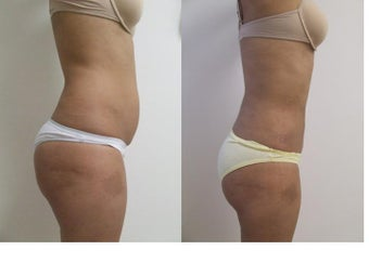 liposuction after 342161