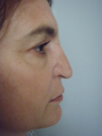 4th Revision Rhinoplasty 346048