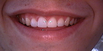 Veneers and crowns after 145694