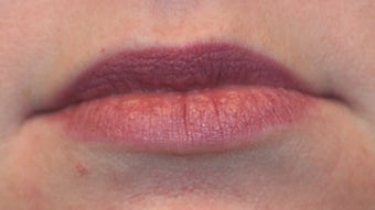 Restylane and botox used to augment the lips before 240184
