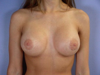 Breast Revision after 307220