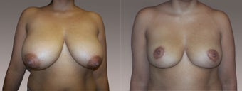 Breast Reduction before 395519