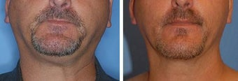 Chin Liposuction before 640711
