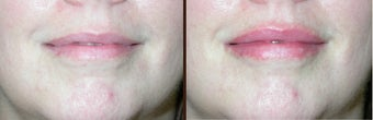 Lip augmentation before 506295