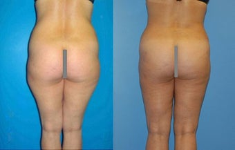 Abdominoplasty before 356617