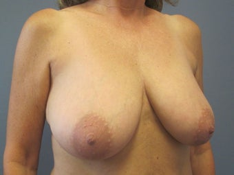 Breast Reduction, Breast Lift 547971
