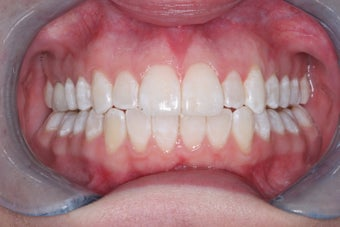 Invisalign after 372735