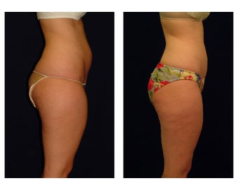 Liposuction before 286706