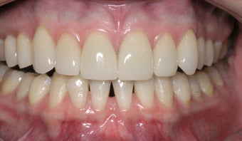 Replacement Porcelain Veneers after 368025