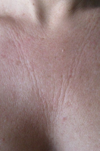 Chest wrinkles treated with Fraxel Restore before 152213
