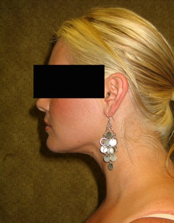 liposuction of neck & jaw line for women after 583584