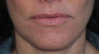 Lip Augmentation before 399260