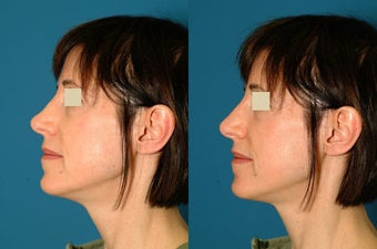 Non Surgical Rhinoplasty before 117307