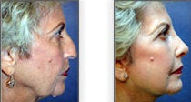 Facelift with Rhinoplasty before 88842