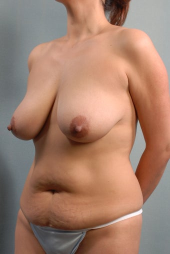 Mastopexy/Lift before 240825