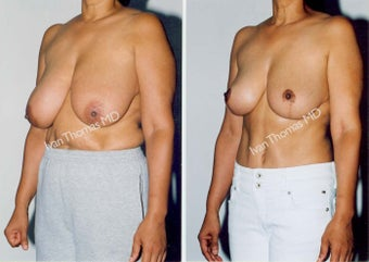 Breast Reduction before 243737