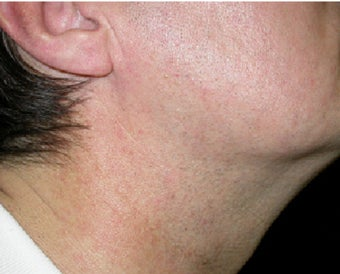 VBeam treatment for neck redness after 123283