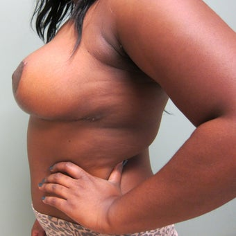Breast Reduction 602405