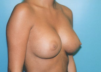 Breast Augmentation - Small B Cup to Small D Cup after 297502