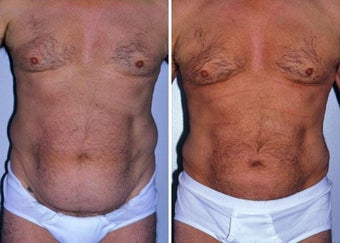 Liposuction after 330689