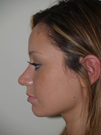 Rhinoplasty after 519756