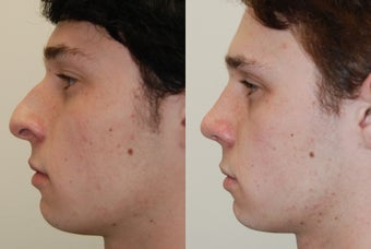 Rhinoplasty Surgery. 1 month post-op. before 279978