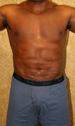 liposuction of abdomen and flanks of man from Los Angeles after 583370