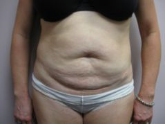 Tummy Tuck before 258623