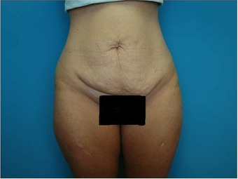 Abdominoplasty (Tummy tuck) before 64683