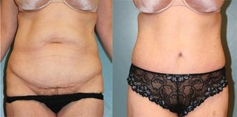 Tummy Tuck before 218300