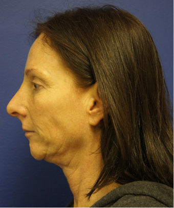 Non-Surgical Face Lift before 625400