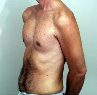 Male Chest Enhancement after 525477