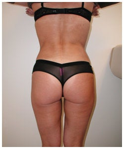 Liposulpture of abdomen, waist, flanks and inner thighs. 334381