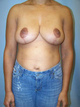 Breast Reduction Surgery after 130073