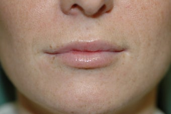 Lip augmentation after 340189